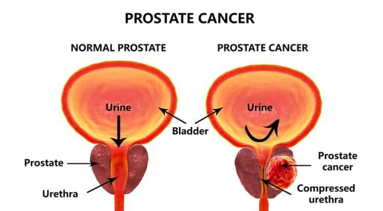 prostate cancer comparison